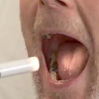 oralhygiene